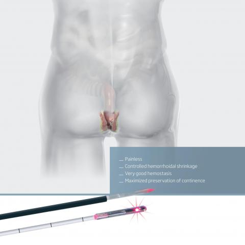 雷射痔瘡瘻管消融術  LHP vs FiLaC